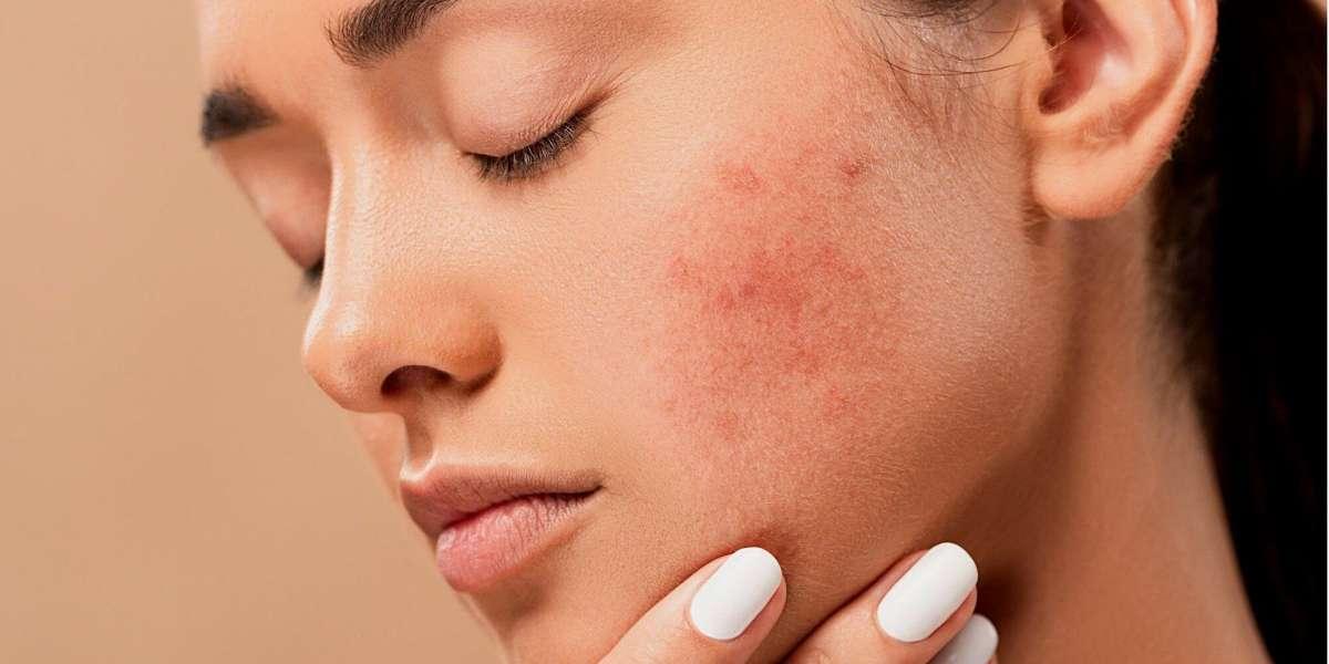 Tudo sobre acne: causas e possíveis tratamentos